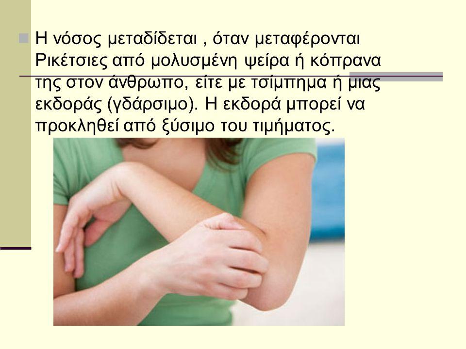 Η νόσος μεταδίδεται, όταν μεταφέρονται Ρικέτσιες από μολυσμένη ψείρα ή κόπρανα της στον άνθρωπο, είτε με τσίμπημα ή μιας εκδοράς (γδάρσιμο). Η εκδορά