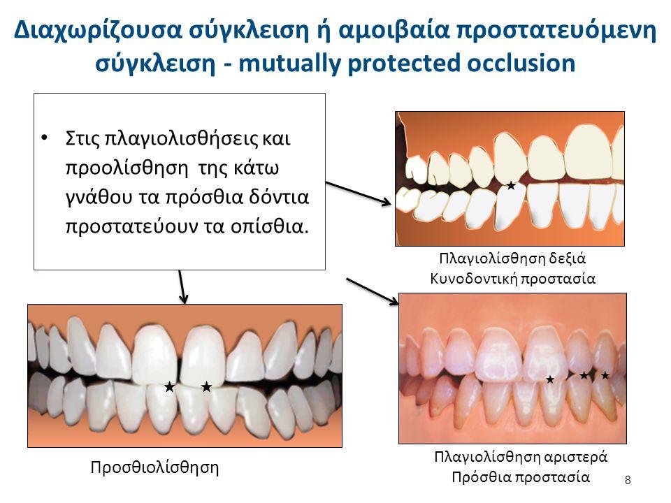 Στις πλαγιολισθήσεις και προολίσθηση της κάτω γνάθου τα πρόσθια δόντια προστατεύουν τα οπίσθια. Πλαγιολίσθηση δεξιά Κυνοδοντική προστασία Πλαγιολίσθησ
