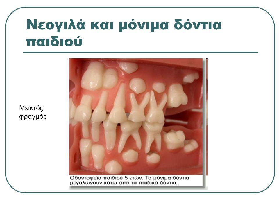 Νεογιλά και μόνιμα δόντια παιδιού Μεικτός φραγμός