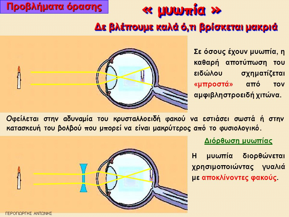 « πρεσβυωπία » « πρεσβυωπία » Προβλήματα όρασης Δε βλέπουμε καλά ό,τι βρίσκεται κοντά Δε βλέπουμε καλά ό,τι βρίσκεται κοντά Σε όσους έχουν πρεσβυ- ωπία, η καθαρή από- τύπωση του ειδώλου σχηματίζεται «πίσω» από τον αμφιβληστρο- ειδή χιτώνα.