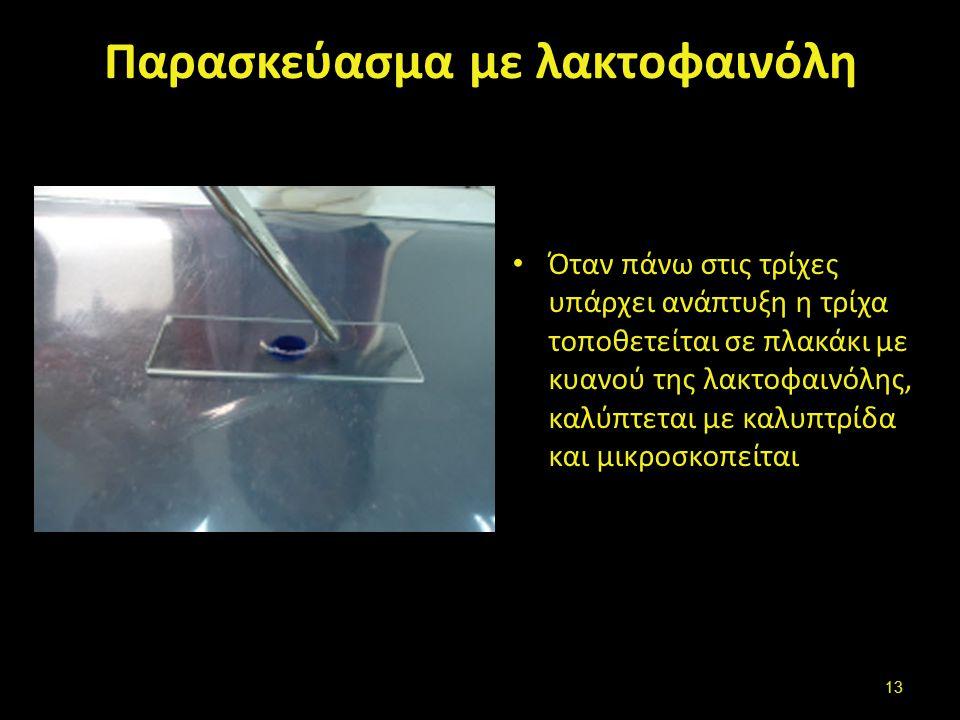 Παρασκεύασμα με λακτοφαινόλη Όταν πάνω στις τρίχες υπάρχει ανάπτυξη η τρίχα τοποθετείται σε πλακάκι με κυανού της λακτοφαινόλης, καλύπτεται με καλυπτρίδα και μικροσκοπείται 13