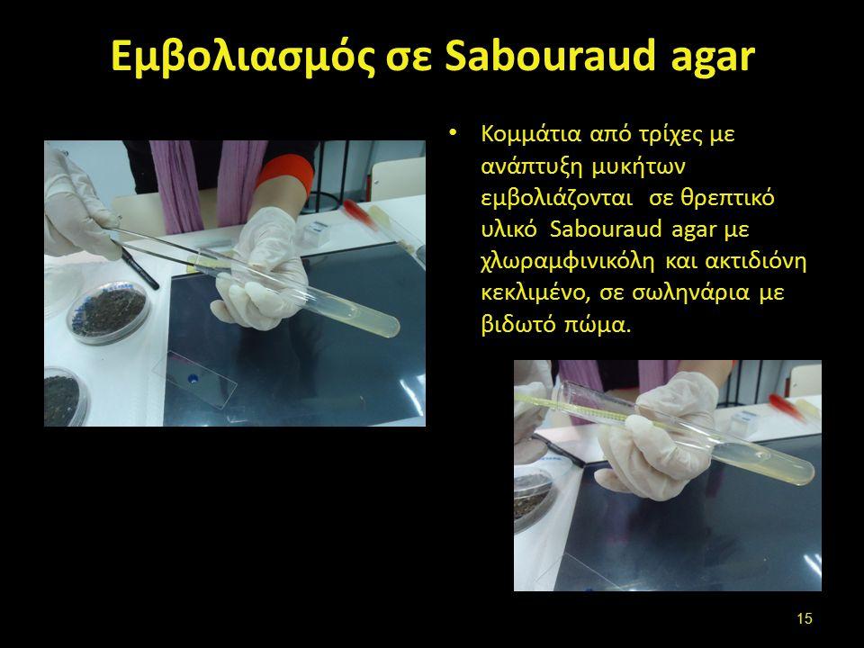 Εμβολιασμός σε Sabοuraud agar Κομμάτια από τρίχες με ανάπτυξη μυκήτων εμβολιάζονται σε θρεπτικό υλικό Sabοuraud agar με χλωραμφινικόλη και ακτιδιόνη κεκλιμένο, σε σωληνάρια με βιδωτό πώμα.