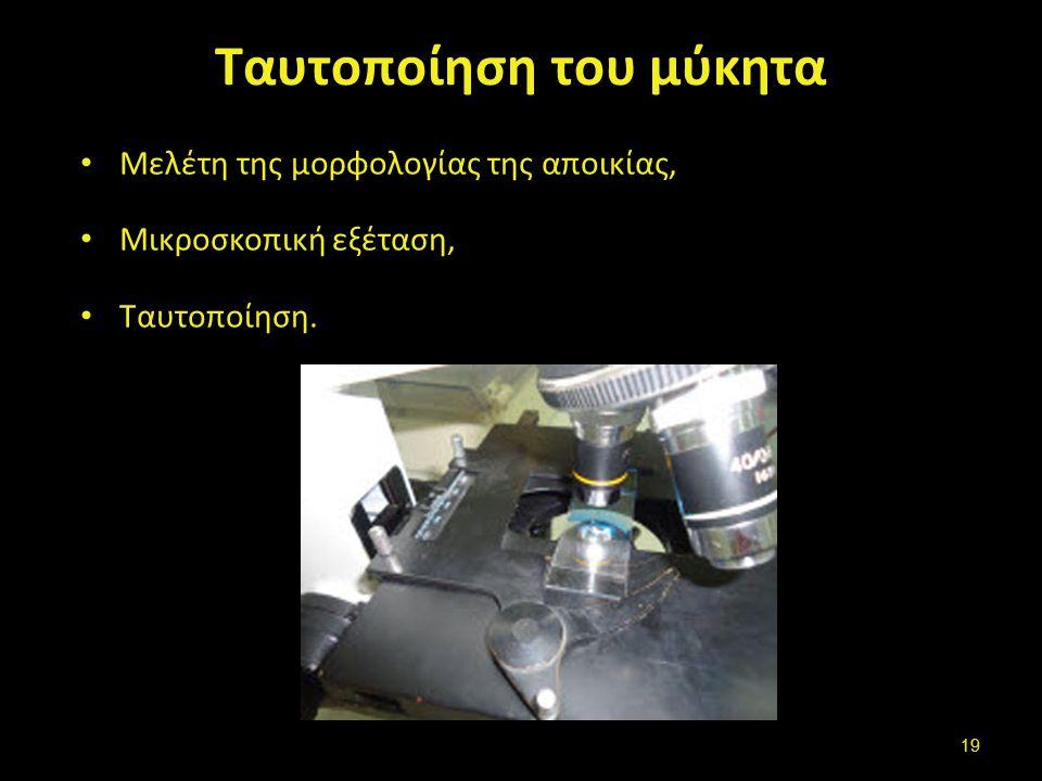 Ταυτοποίηση του μύκητα Μελέτη της μορφολογίας της αποικίας, Μικροσκοπική εξέταση, Ταυτοποίηση. 19