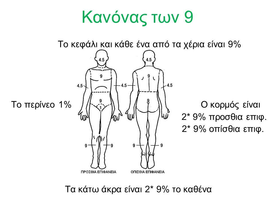 Κανόνας των 9 Το κεφάλι και κάθε ένα από τα χέρια είναι 9% Το περίνεο 1% Ο κορμός είναι 2* 9% προσθια επιφ.
