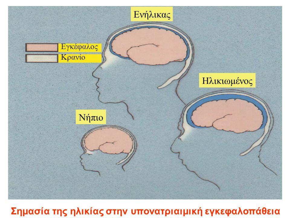 Σημασία της ηλικίας στην υπονατριαιμική εγκεφαλοπάθεια Νήπιο Ενήλικας Ηλικιωμένος Εγκέφαλος Κρανίο