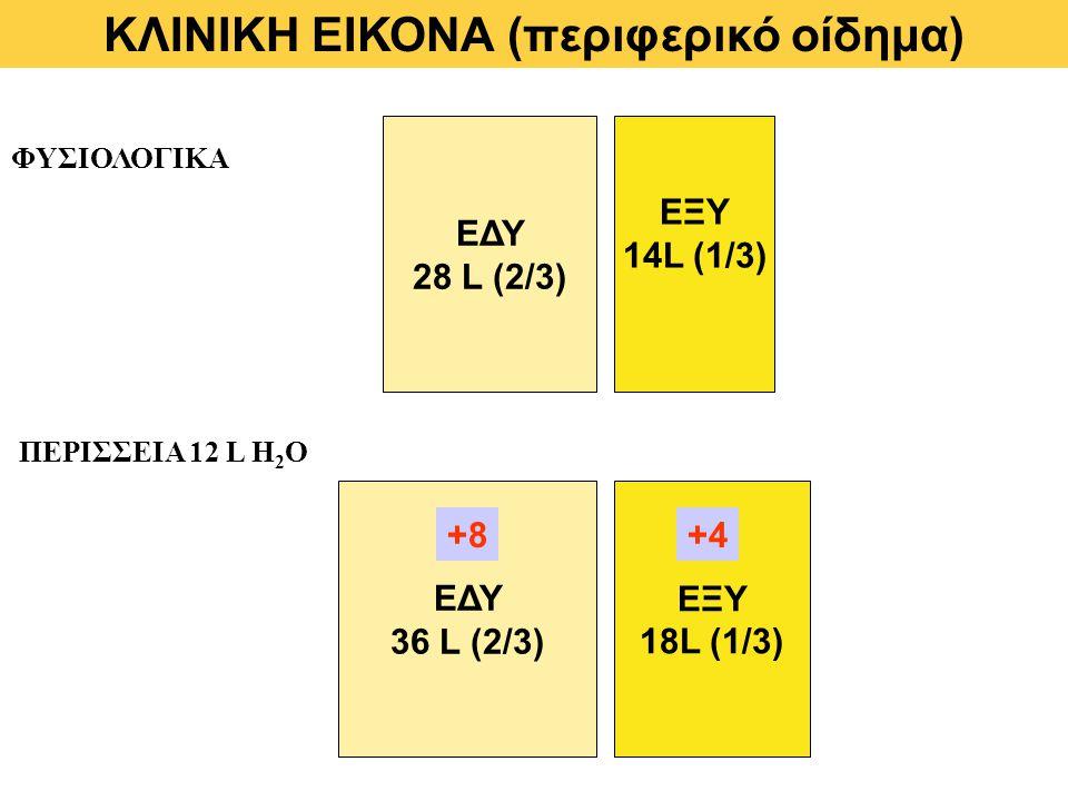 ΦΥΣΙΟΛΟΓΙΚΑ ΠΕΡΙΣΣΕΙΑ 12 L Η 2 Ο ΕΔΥ 36 L (2/3) ΕΞΥ 18L (1/3) ΕΔΥ 28 L (2/3) ΕΞΥ 14L (1/3) +8+4 ΚΛΙΝΙΚΗ ΕΙΚΟΝΑ (περιφερικό οίδημα)