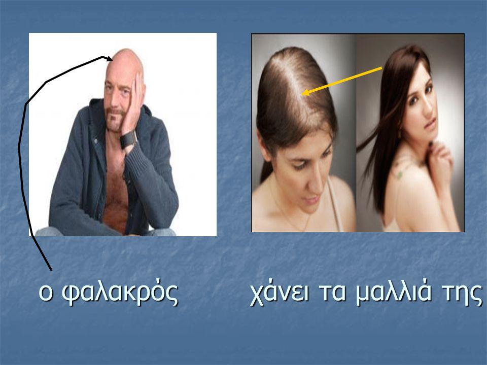 ο φαλακρός χάνει τα μαλλιά της ο φαλακρός χάνει τα μαλλιά της
