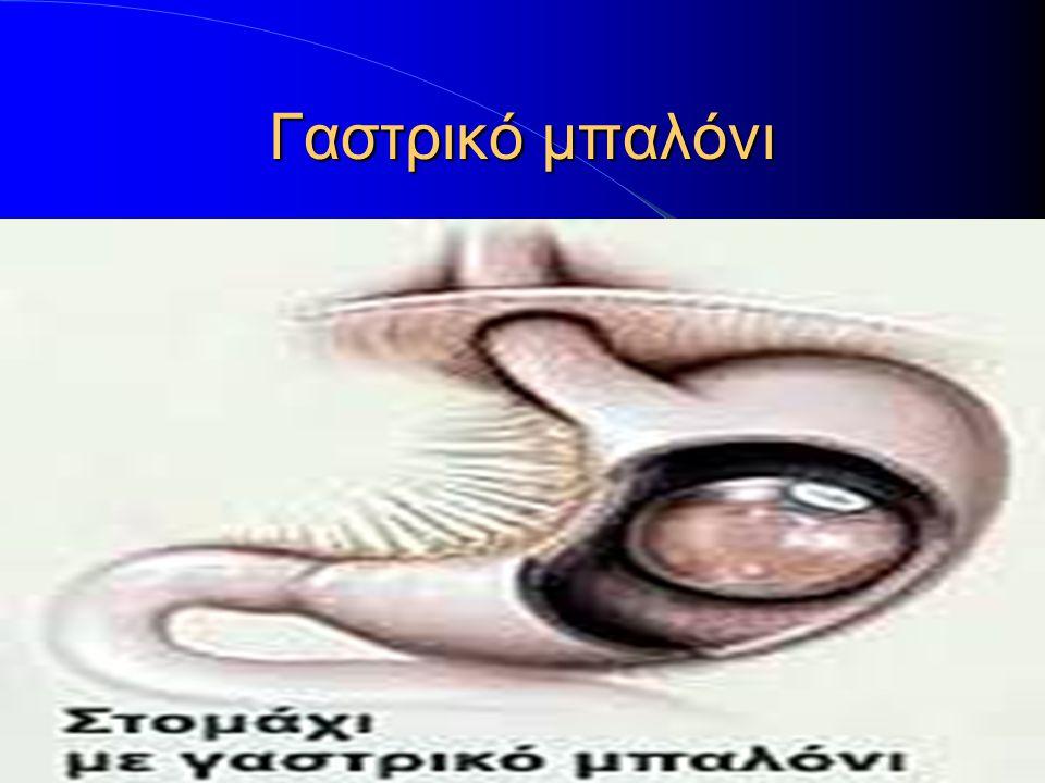 Αφαίρεση του θόλου του στομάχου(μανίκι).