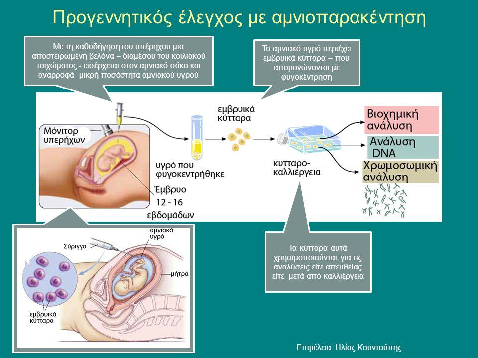 Προγεννητικός έλεγχος με αμνιοπαρακέντηση Με τη καθοδήγηση του υπέρηχου μια αποστειρωμένη βελόνα – διαμέσου του κοιλιακού τοιχώματος - εισέρχεται στον