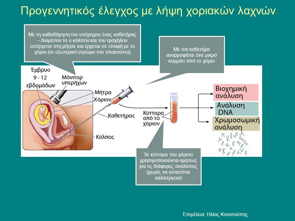Προγεννητικός έλεγχος με λήψη χοριακών λαχνών Με τον καθετήρα αναρροφάται ένα μικρό κομμάτι από το χόριο Τα κύτταρα του χόριου χρησιμοποιούνται αμέσως