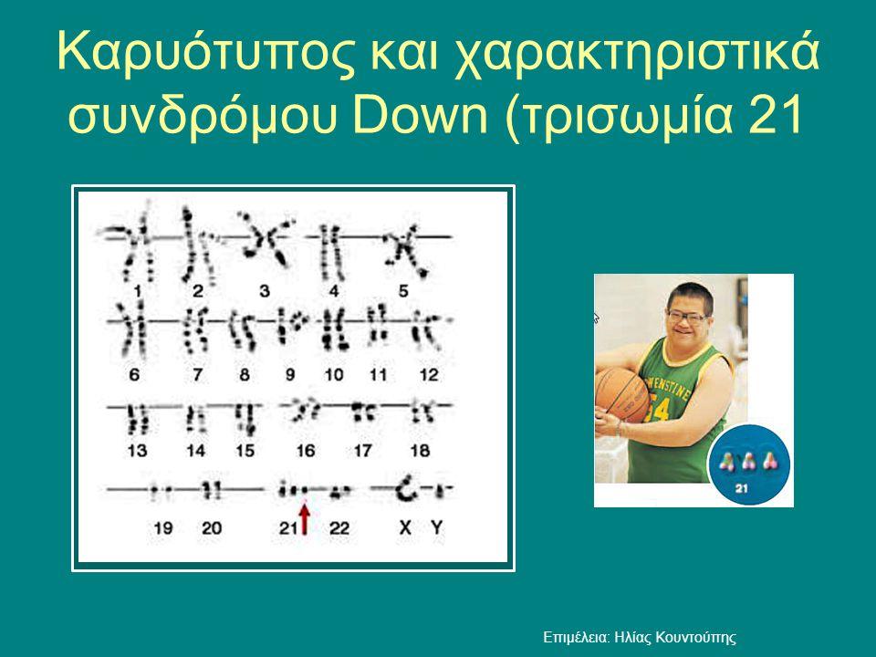Καρυότυπος και χαρακτηριστικά συνδρόμου Down (τρισωμία 21 Επιμέλεια: Ηλίας Κουντούπης