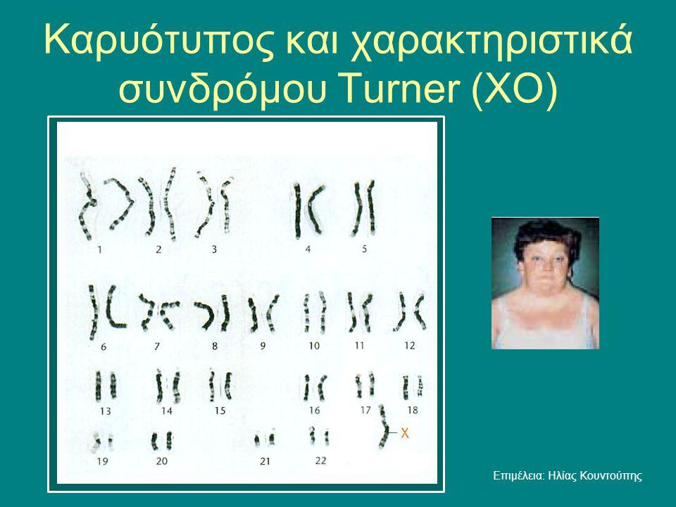 Καρυότυπος και χαρακτηριστικά συνδρόμου Τurner (ΧO) Επιμέλεια: Ηλίας Κουντούπης