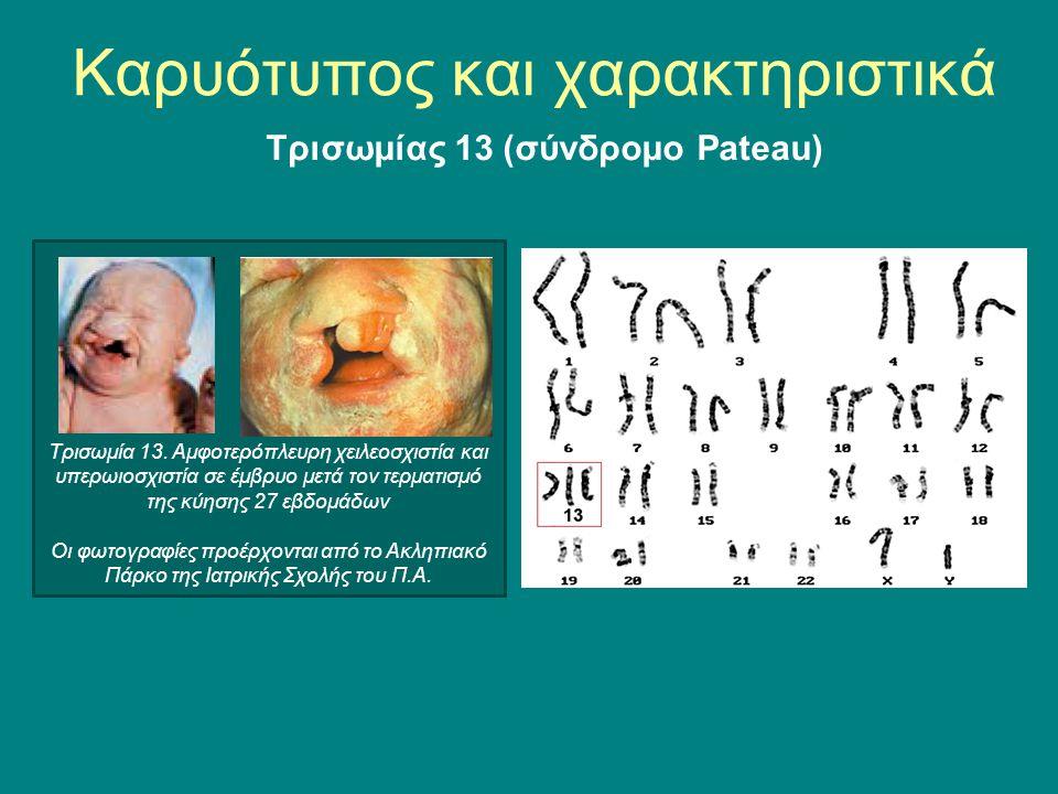 Τρισωμία 13. Αμφοτερόπλευρη χειλεοσχιστία και υπερωιοσχιστία σε έμβρυο μετά τον τερματισμό της κύησης 27 εβδομάδων Οι φωτογραφίες προέρχονται από το Α