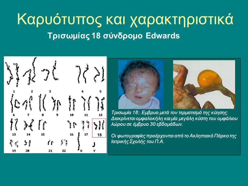 Τρισωμία 18:. Eμβρυο μετά τον τερματισμό της κύησης. Διακρίνεται ομφαλοκήλη και μία μεγάλη κύστη του ομφάλιου λώρου σε έμβρυο 30 εβδομάδων. Οι φωτογρα
