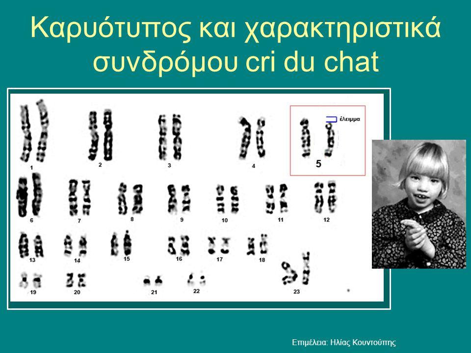 Καρυότυπος και χαρακτηριστικά συνδρόμου cri du chat Επιμέλεια: Ηλίας Κουντούπης
