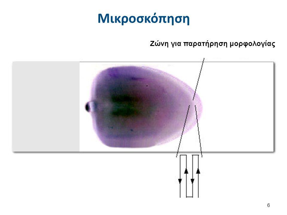 Ζώνη για παρατήρηση μορφολογίας Μικροσκόπηση 6