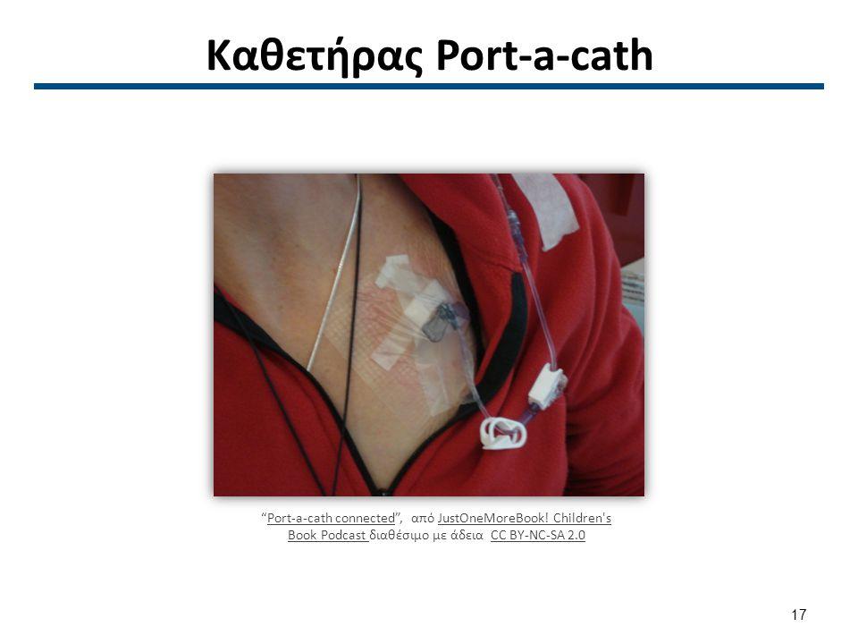 """Καθετήρας Port-a-cath """"Port-a-cath connected"""", από JustOneMoreBook! Children's Book Podcast διαθέσιμο με άδεια CC BY-NC-SA 2.0Port-a-cath connectedJus"""