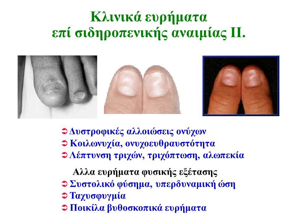 Κλινικά ευρήματα επί σιδηροπενικής αναιμίας ΙΙ.  Δυστροφικές αλλοιώσεις ονύχων  Κοιλωνυχία, ονυχοευθραυστότητα  Λέπτυνση τριχών, τριχόπτωση, αλωπεκ
