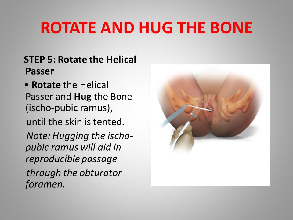 ROTATE AND HUG THE BONE STEP 5: Rotate the Helical Passer Rotate the Helical Passer and Hug the Bone (ischo-pubic ramus), until the skin is tented.