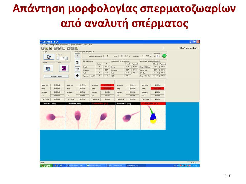 Aπάντηση μορφολογίας σπερματοζωαρίων από αναλυτή σπέρματος 110