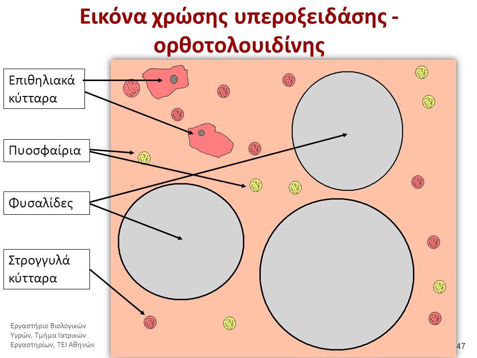 Εικόνα χρώσης υπεροξειδάσης - ορθοτολουιδίνης Επιθηλιακά κύτταρα Πυοσφαίρια Φυσαλίδες Στρογγυλά κύτταρα 47 Εργαστήριο Βιολογικών Υγρών, Τμήμα Ιατρικών