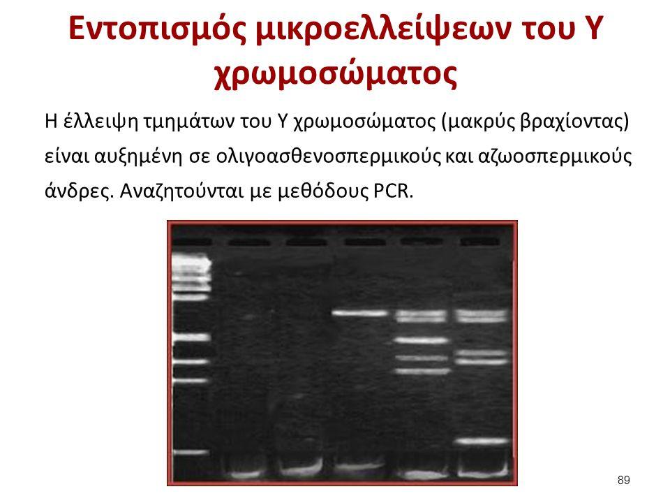 Εντοπισμός μικροελλείψεων του Υ χρωμοσώματος Η έλλειψη τμημάτων του Υ χρωμοσώματος (μακρύς βραχίοντας) είναι αυξημένη σε ολιγοασθενοσπερμικούς και αζω