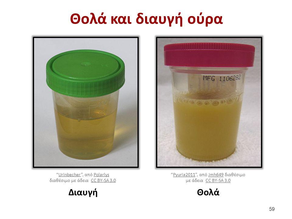 """Θολά και διαυγή ούρα """"Urinbecher"""", από PolarlysUrinbecherPolarlys διαθέσιμο με άδεια CC BY-SA 3.0CC BY-SA 3.0 Διαυγή """"Pyuria2011"""", από Jmh649 διαθέσιμ"""