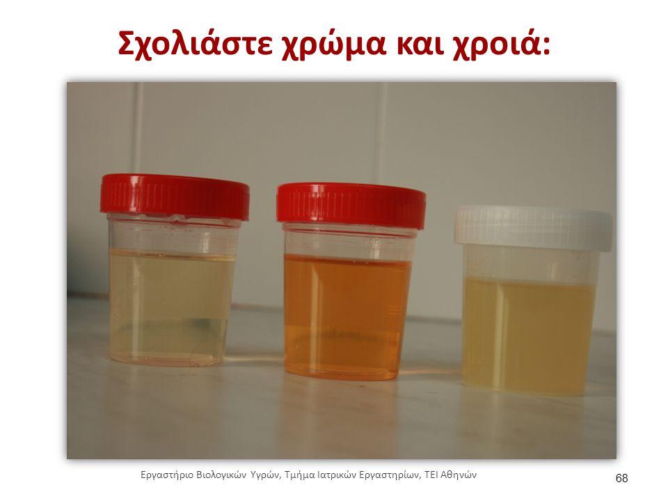 Σχολιάστε χρώμα και χροιά: 68 Εργαστήριο Βιολογικών Υγρών, Τμήμα Ιατρικών Εργαστηρίων, ΤΕΙ Αθηνών