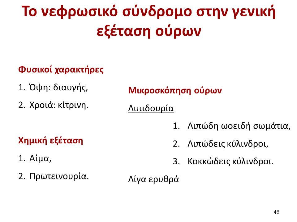 Το νεφρωσικό σύνδρομο στην γενική εξέταση ούρων Φυσικοί χαρακτήρες 1.Όψη: διαυγής, 2.Χροιά: κίτρινη. Χημική εξέταση 1.Αίμα, 2.Πρωτεινουρία. Μικροσκόπη