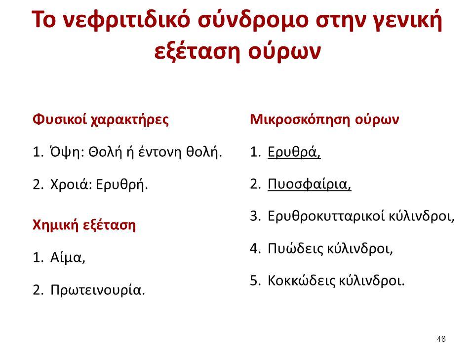 Το νεφριτιδικό σύνδρομο στην γενική εξέταση ούρων Φυσικοί χαρακτήρες 1.Όψη: Θολή ή έντονη θολή. 2.Χροιά: Eρυθρή. Χημική εξέταση 1.Αίμα, 2.Πρωτεινουρία