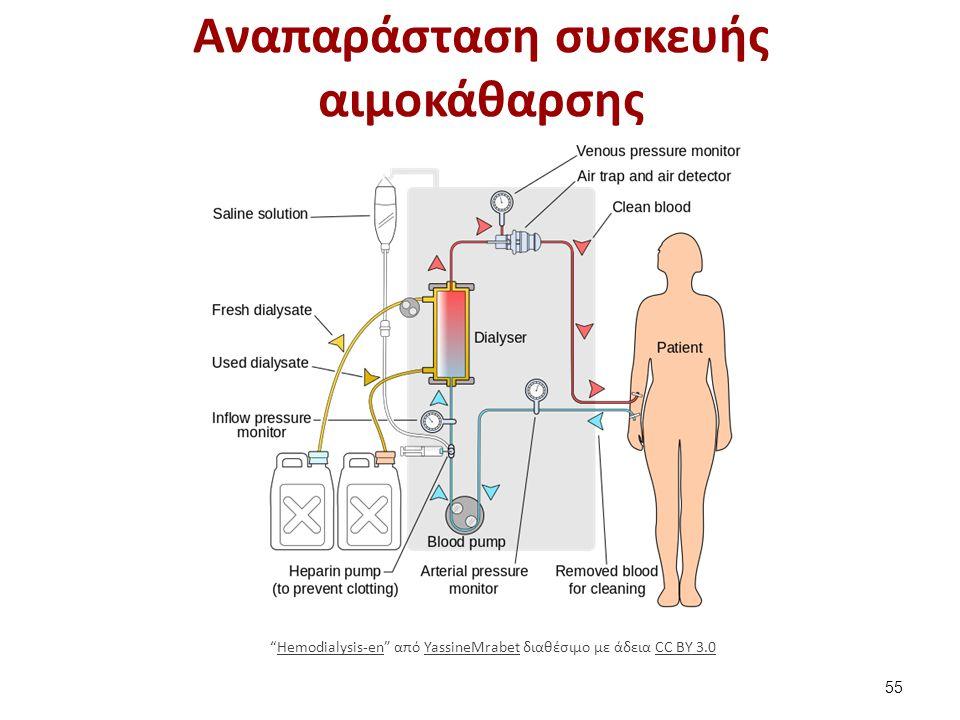 Αναπαράσταση συσκευής αιμοκάθαρσης 55 Hemodialysis-en από YassineMrabet διαθέσιμο με άδεια CC BY 3.0Hemodialysis-enYassineMrabetCC BY 3.0