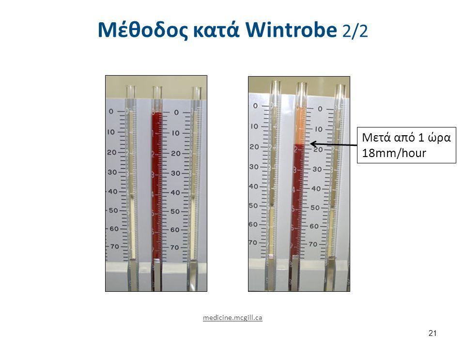 Μέθοδος κατά Wintrobe 2/2 21 medicine.mcgill.ca Μετά από 1 ώρα 18mm/hour