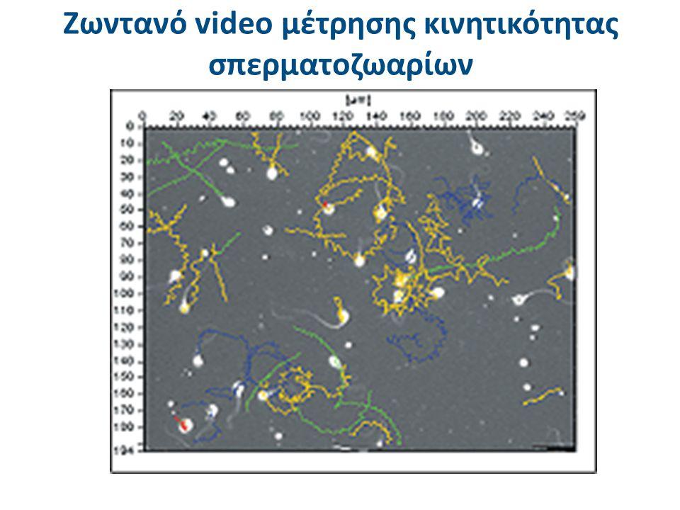 Ζωντανό video μέτρησης κινητικότητας σπερματοζωαρίων