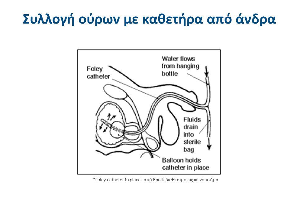 """Συλλογή ούρων με καθετήρα από άνδρα """"Foley catheter in place"""" από Epolk διαθέσιμο ως κοινό κτήμαFoley catheter in place"""