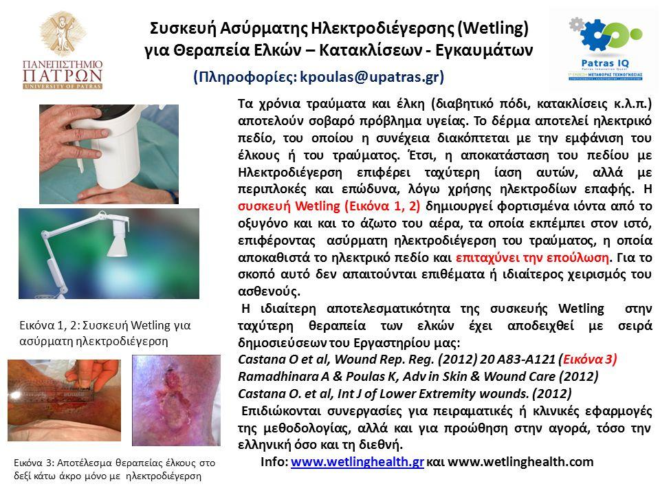 Συσκευή Ασύρματης Ηλεκτροδιέγερσης (Wetling) για Θεραπεία Ελκών – Κατακλίσεων - Εγκαυμάτων (Πληροφορίες: kpoulas@upatras.gr) Τα χρόνια τραύματα και έλ