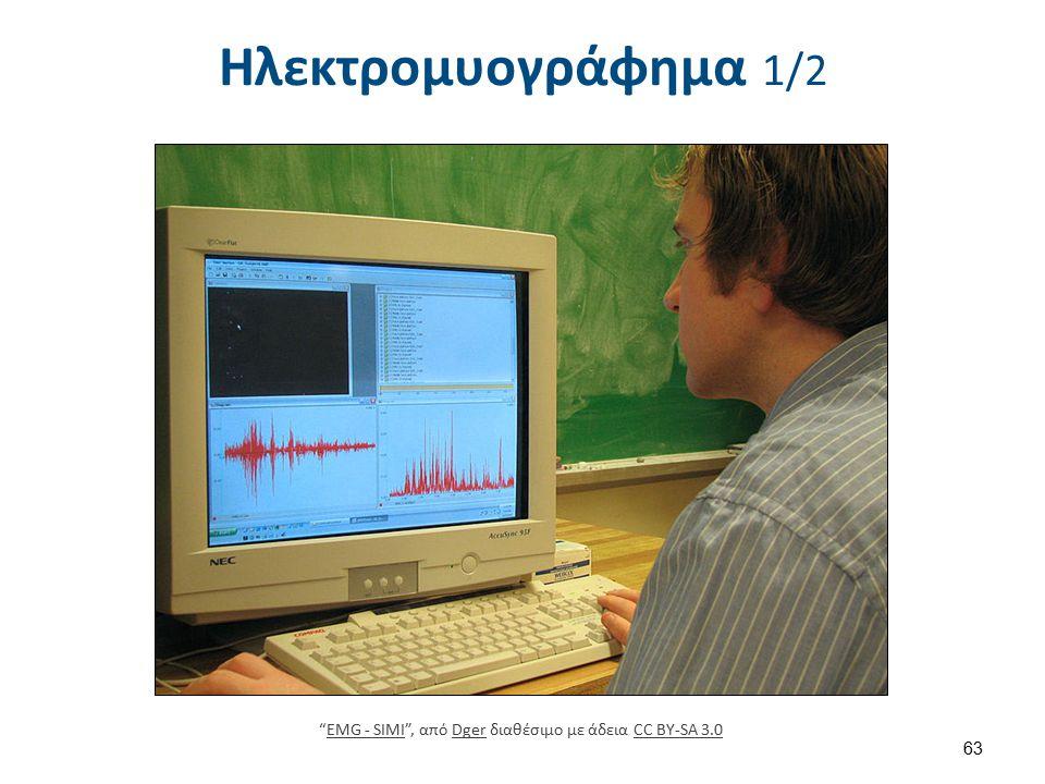"""Ηλεκτρομυογράφημα 1/2 63 """"EMG - SIMI"""", από Dger διαθέσιμο με άδεια CC BY-SA 3.0EMG - SIMIDgerCC BY-SA 3.0"""