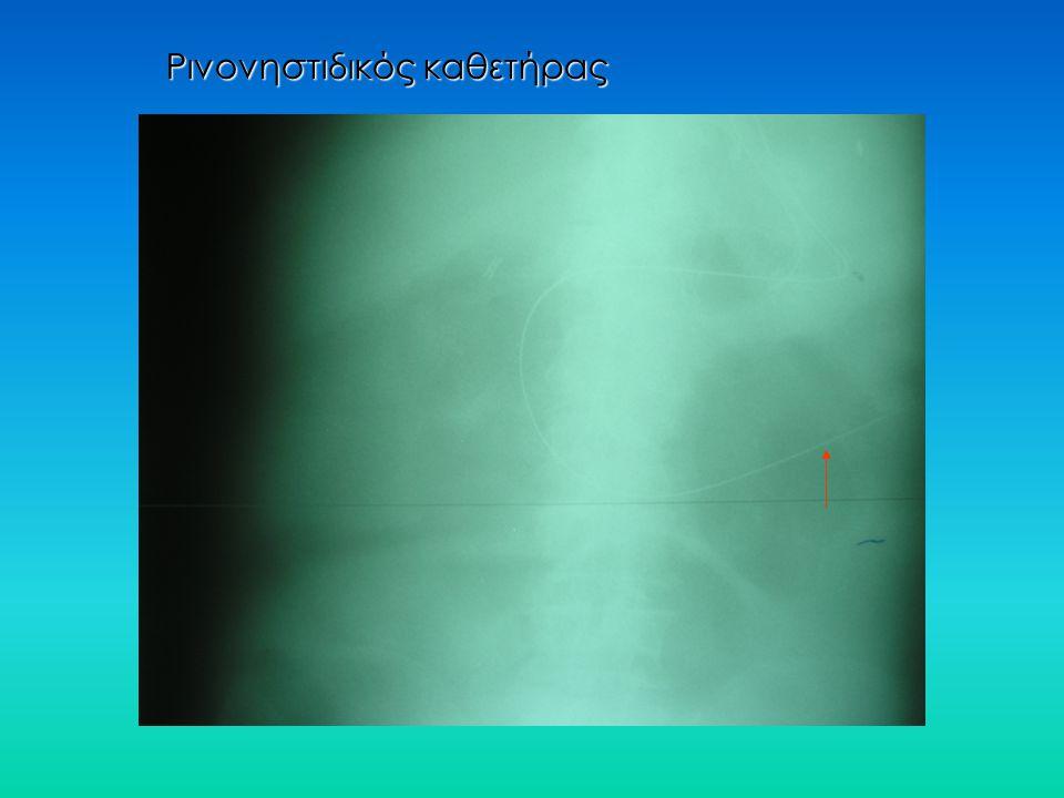 Ρινονηστιδικός καθετήρας