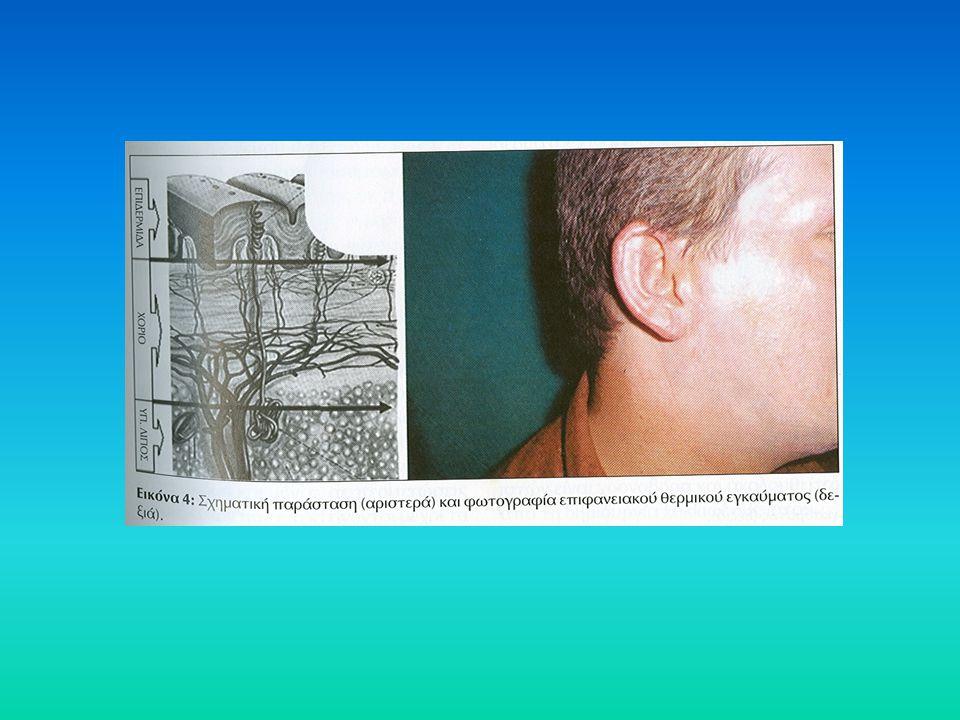Σίτιση του εγκαυματία Ασθενείς με 2 ου η 3 ου βαθμού εγκαύματα βρίσκονται σε υπερμεταβολική κατάσταση - ανάπτυξη διατροφικού πλάνου Παροχή επαρκούς ποσότητας θερμίδων για την κάλυψη των αναγκών του υπερμεταβολισμού Υπολογισμός αναγκών με έμμεση θερμιδομετρία εφ' όσον αυτή είναι εφικτή Αυξημένη χορήγηση πρωτεϊνών μέχρι να επιτευχθεί ικανοποιητική επούλωση Η εντερική σίτιση πρέπει να ξεκινά όσο το δυνατόν ενωρίτερα και είναι προτιμότερη της παρεντερική Η παρεντερική χορηγείται όταν δεν είναι δυνατή η εντερική ή όταν δεν προβλέπεται να καλύψει τις ανάγκες τις επόμενες 4-5 ημέρες Οδηγίες Αμερικανικής Εταιρείας Εντερικής & Παρεντερικής Διατροφής