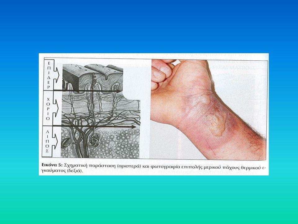 Πέψη, απορρόφηση και χρησιμοποίηση των υδατανθράκων 1) Μαλτάση (για την λακτόζη: λακτάση) 2) Για την δόμηση VLDL * Διεργασία διεγειρόμενη από την ινσουλίνη Διεργασία διεγειρόμενη από την ινσουλίνη Στόμα Άμυλο/ γλυκογόνο Δεξτρίνες Γλυκόζη Μαλτόζη + +  - αμυλά ση Στόμαχος Εντερικός αυλός Εντερικός βλεννογόνο ς Ήπαρ Άμυλο/ γλυκογόνο  -  - αμυλά ση Dextrins Μαλτόζη / ισομαλτόζη  - αμυλάση/1,6 γλυκοζιδάση Γλυκόζη + 1) ΑίμαCNS RBC/Ren.