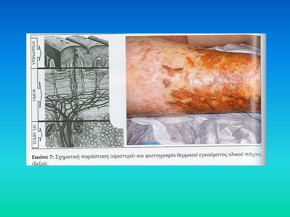 Μικροβιακά παράγωγα (ενδοτοξίνες), τμήματα από το κυτταρικό τοίχωμα ή ζωντανοί μικροοργανισμοί εισέρχονται στην κυκλοφορία και προκαλούν απελευθέρωση κυτταροκινών (παράγοντας αύξησης των όγκων – TNF, ιντερλευκίνες – IL1, IL6) Οι κυτταροκίνες αυξάνουν τον υπερμεταβολισμό και μπορούν να πυροδοτήσουν μια συστηματική φλεγμονώδη αντίδραση