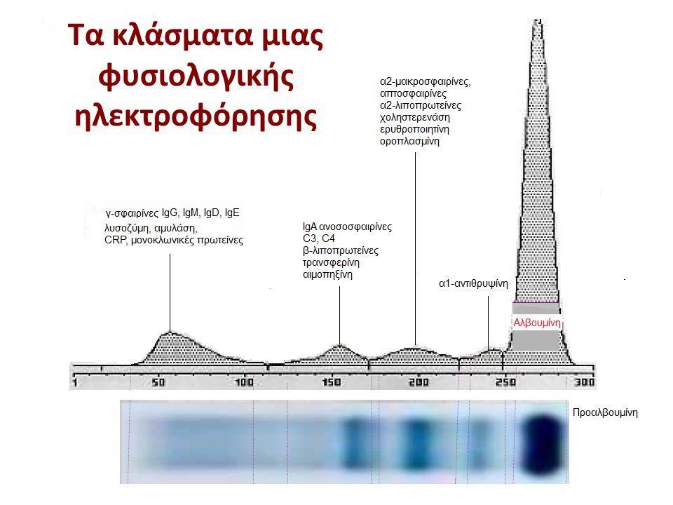 α2 γ Αλβουμίνη β α1 Αποτέλεσμα ηλεκτροφόρησης