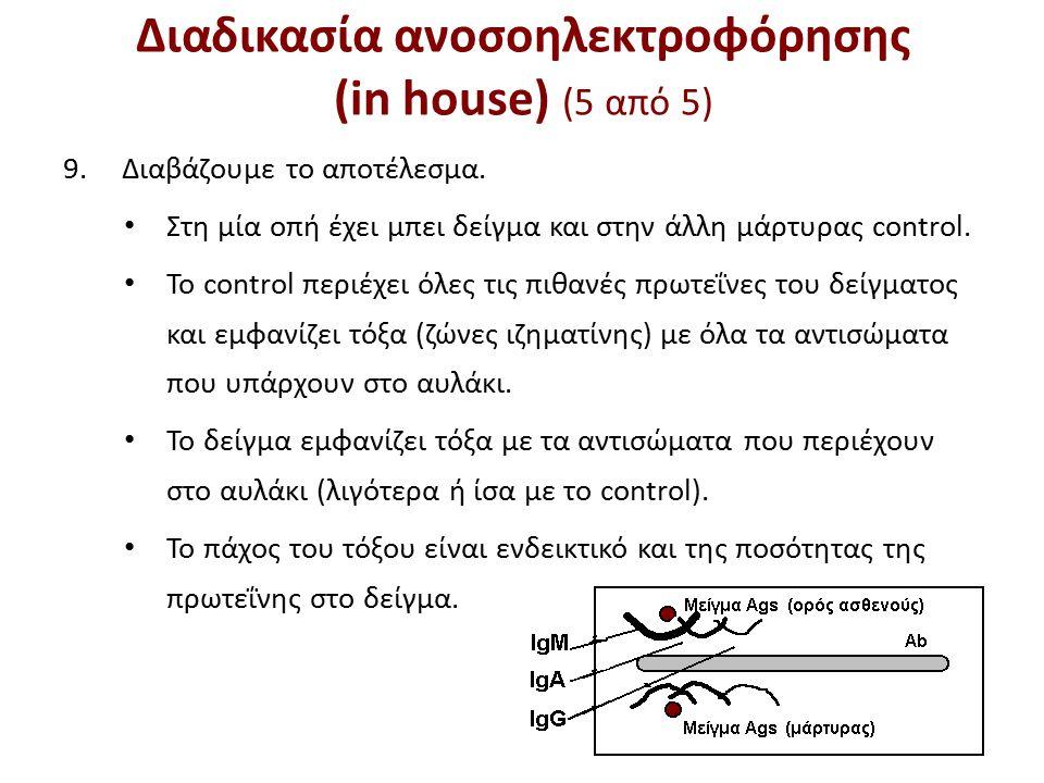 Διαδικασία ανοσοηλεκτροφόρησης (in house) (5 από 5) 9.Διαβάζουμε το αποτέλεσμα.