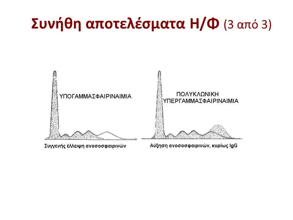 Πρωτόκολλο για την παρακολούθηση μονοκλωνικών υπεργαμμασφαιριναιμιών 1.Μέτρηση του λόγου κ/λ.