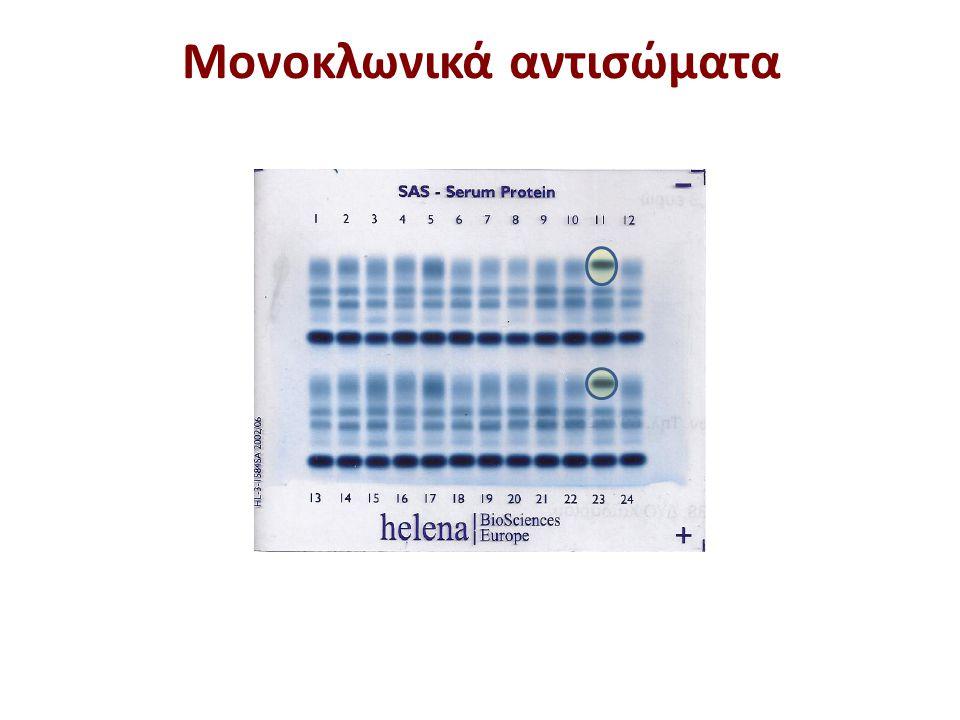 Μονοκλωνικές υπεργαμμασφαιρινοπάθειες Πολλαπλού μυέλωμα Διάγνωση με ανοσοηλεκτροφόρηση ή ανοσοκαθήλωση