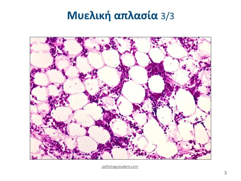 Μυελική απλασία 3/3 3 pathologystudent.com