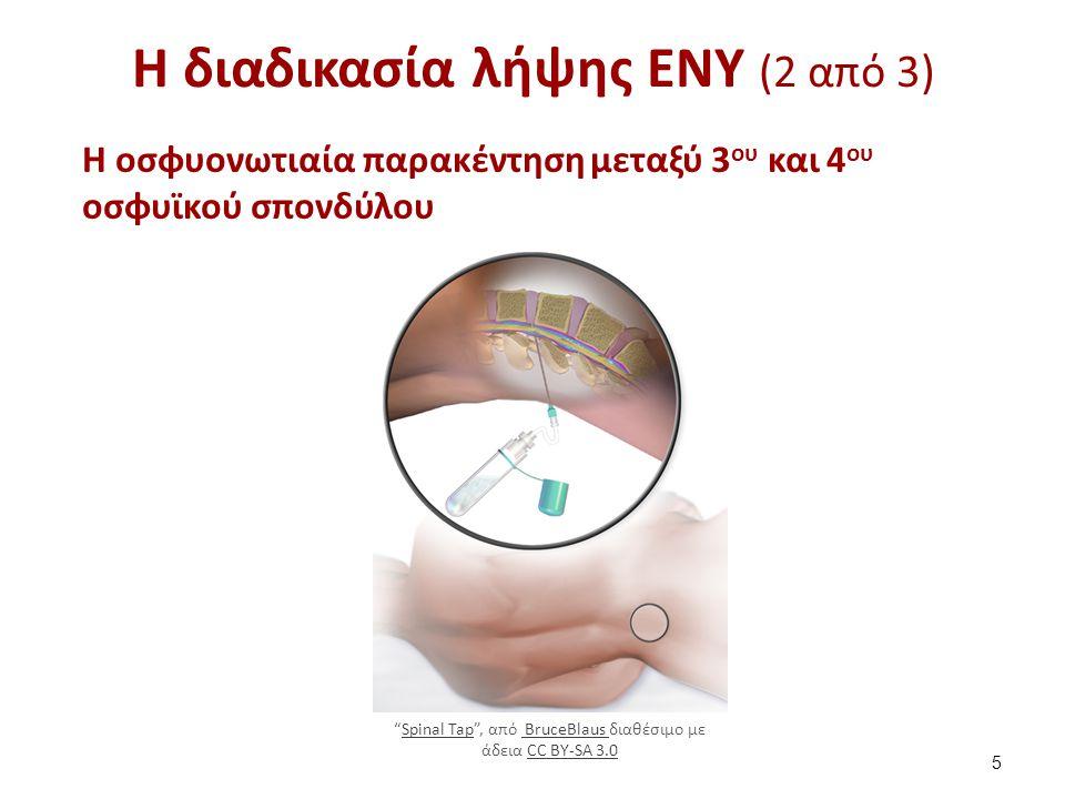"""Η διαδικασία λήψης ΕΝΥ (2 από 3) Η οσφυονωτιαία παρακέντηση μεταξύ 3 ου και 4 ου οσφυϊκού σπονδύλου 5 """"Spinal Tap"""", από BruceBlaus διαθέσιμο με άδεια"""
