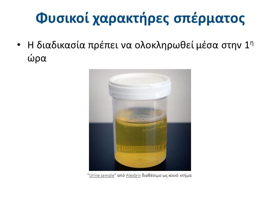 """Φυσικοί χαρακτήρες σπέρματος Η διαδικασία πρέπει να ολοκληρωθεί μέσα στην 1 η ώρα """"Urine sample"""" από Alexbrn διαθέσιμο ως κοινό κτήμαUrine sampleAlexb"""