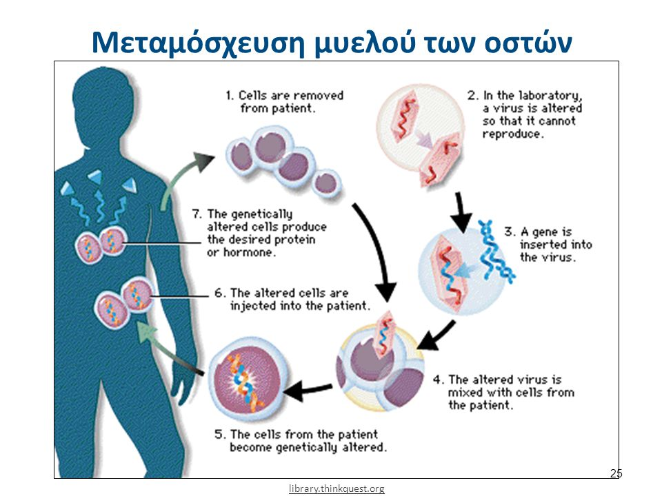 library.thinkquest.org Μεταμόσχευση μυελού των οστών 25