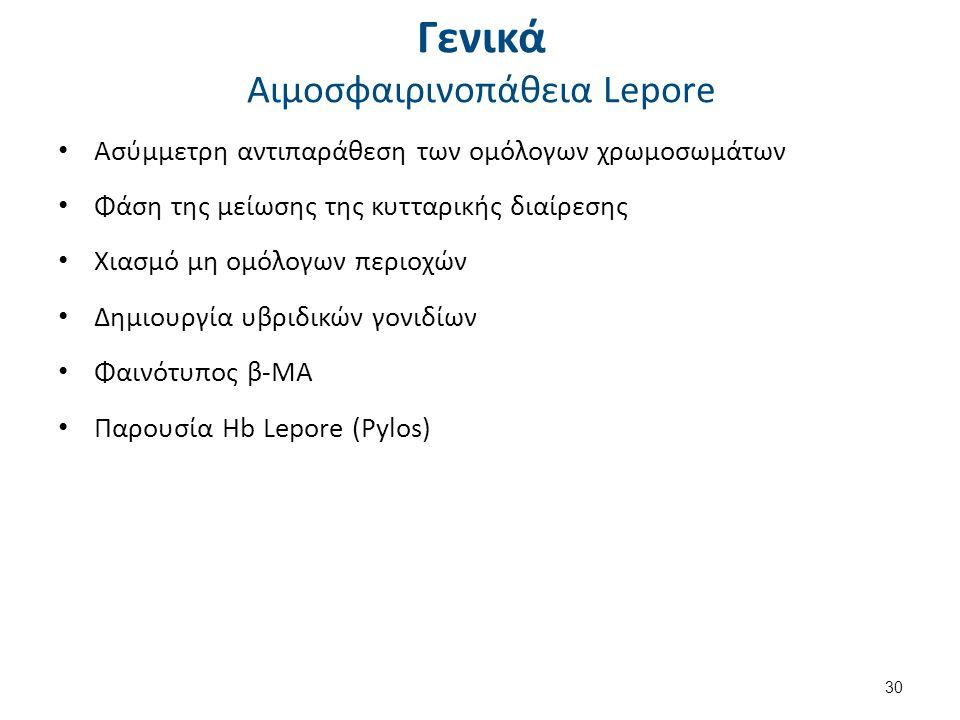 Γενικά Αιμοσφαιρινοπάθεια Lepore Ασύμμετρη αντιπαράθεση των ομόλογων χρωμοσωμάτων Φάση της μείωσης της κυτταρικής διαίρεσης Χιασμό μη ομόλογων περιοχών Δημιουργία υβριδικών γονιδίων Φαινότυπος β-ΜΑ Παρουσία Hb Lepore (Pylos) 30