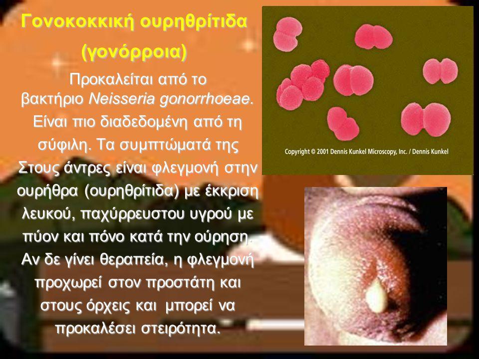 Γονοκοκκική ουρηθρίτιδα (γονόρροια) Προκαλείται από το βακτήριο Neisseria gonorrhoeae. Είναι πιο διαδεδομένη από τη σύφιλη. Τα συμπτώματά της Στους άν
